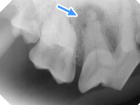 歯科用レントゲンの利用