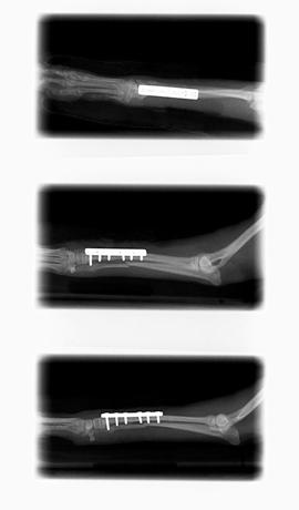 骨折に金属プレートを使って治療した症例